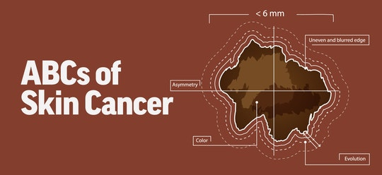 The ABCs of Skin Cancer