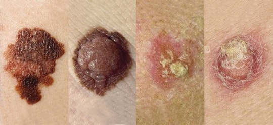 A comparison of different skin cancer moles